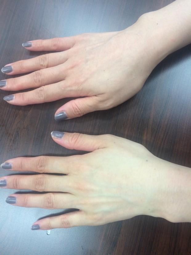 右手が普段の手(>_<) 左が泡パック後の手!! こんなに変わりました♪